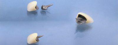 Лечение на абразия - металокерамични коронки и щифтови пънчета