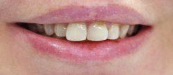 Холивудска усмивка с порцеланови фасети - изходно състояние