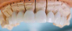Холивудска усмивка с порцеланови фасети - фасети на горните зъби