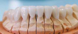 Холивудска усмивка с порцеланови фасети - фасети на долните зъби
