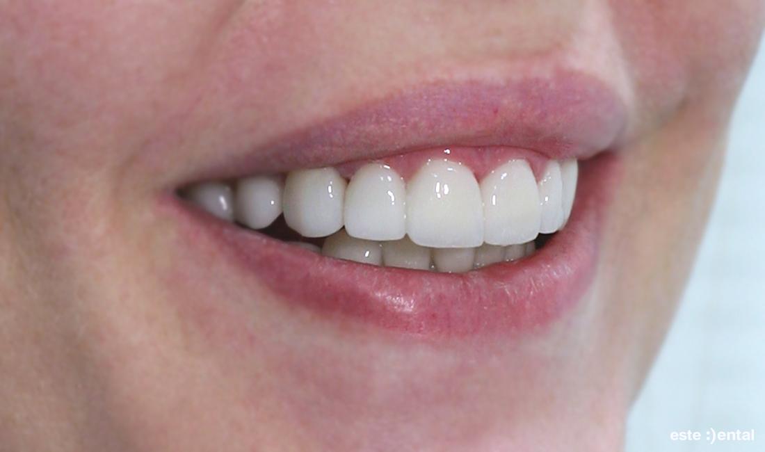 Холивудска усмивка с порцеланови фасети - краен резултат