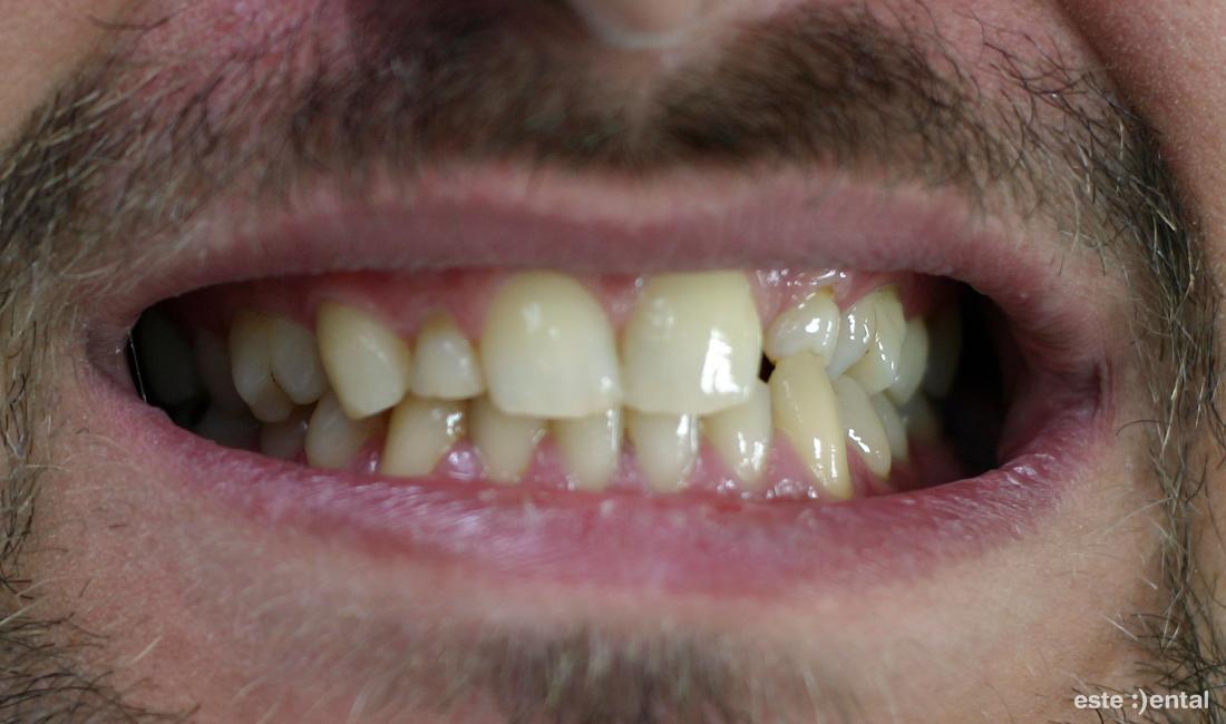 Адхезивен мост - изходно състояние - персистиращ млечен кучешки зъб и липса на страничен резец