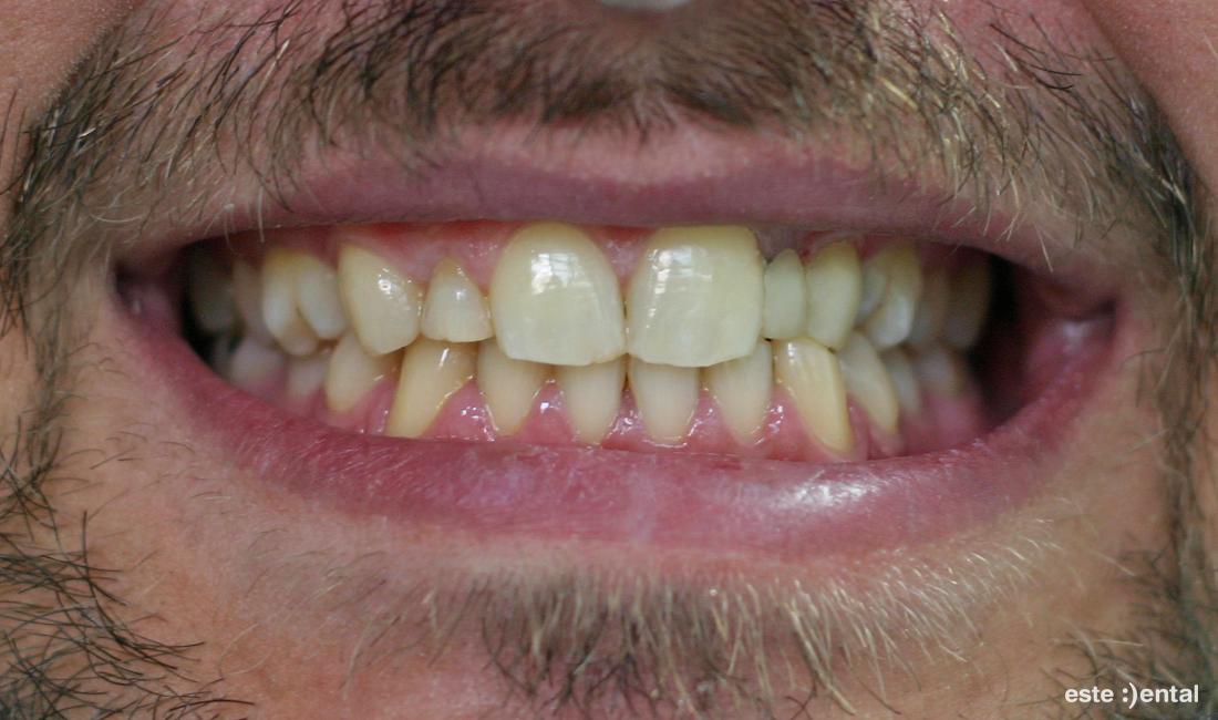 Азхезивен мост - краен резултат, млечният кучешки зъб е премоделиран в страничен резец и кучешки зъб с фотополимер