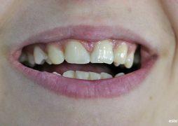 Диастема и липса на зародиши на страничните рецзи - затваряне на диастемата и премозелиране на кучешките зъби