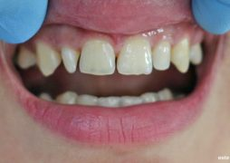 Бондинг - затваряне на разстояния между зъбите