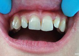Разстояния между зъбите - изходно състояние