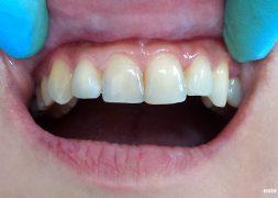 Разстояния между зъбите - премоделиране с фотополимер (бондинг)