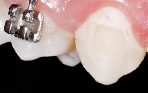 Зъбен кариес - бяло петно
