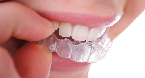 Професионално избелване на зъбите в домашни условия