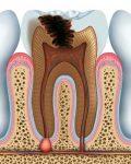 зъбен гранулом