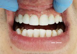 Холивудска усмивка с фотополимерни фасети