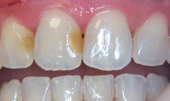По-тъмни пломби на предните зъби след избелване