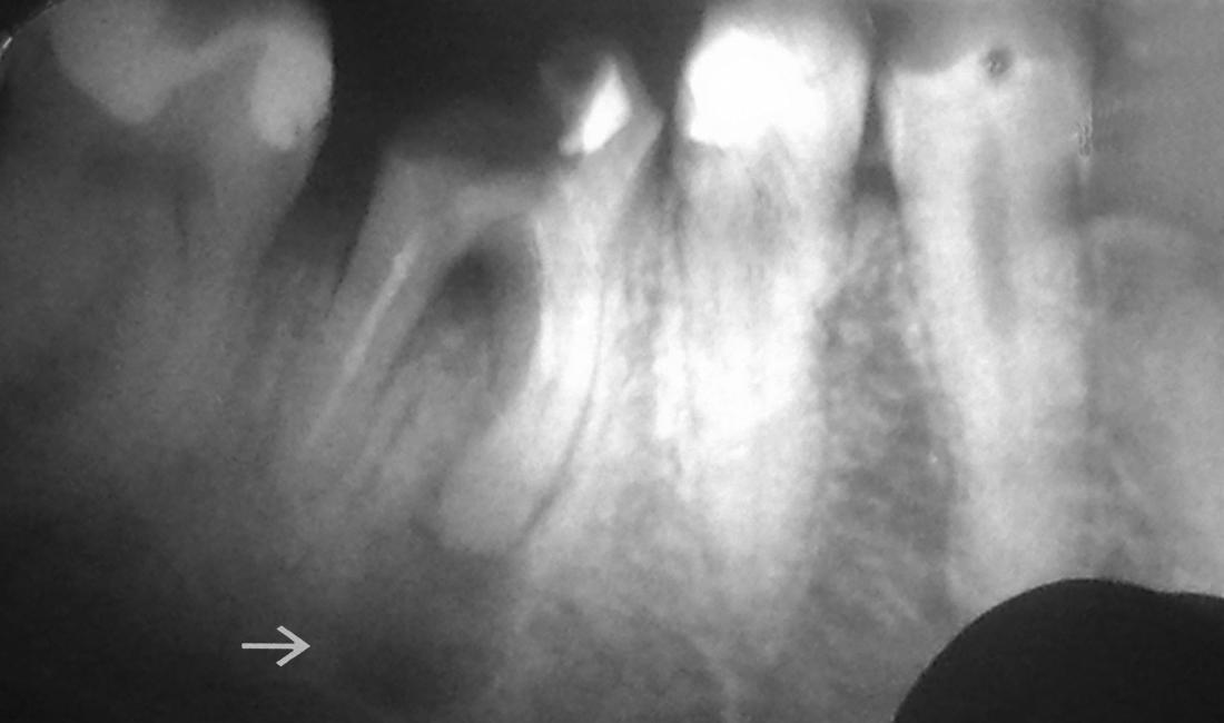 Лечение на гранулом с хемисекция - гранулом при корен с незапълнен канал