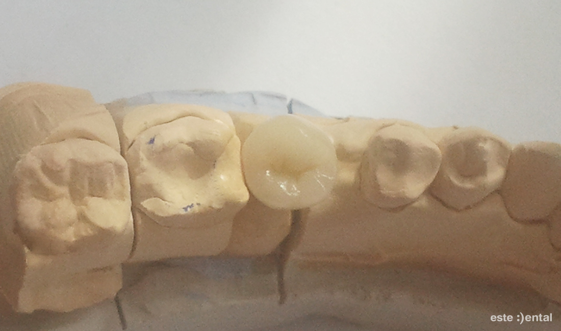 Лечение на гранулом с хемисекция - щихтова металокерамична коронка