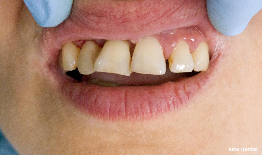 Лечение на пародонтит - изходно състояние на горните зъби