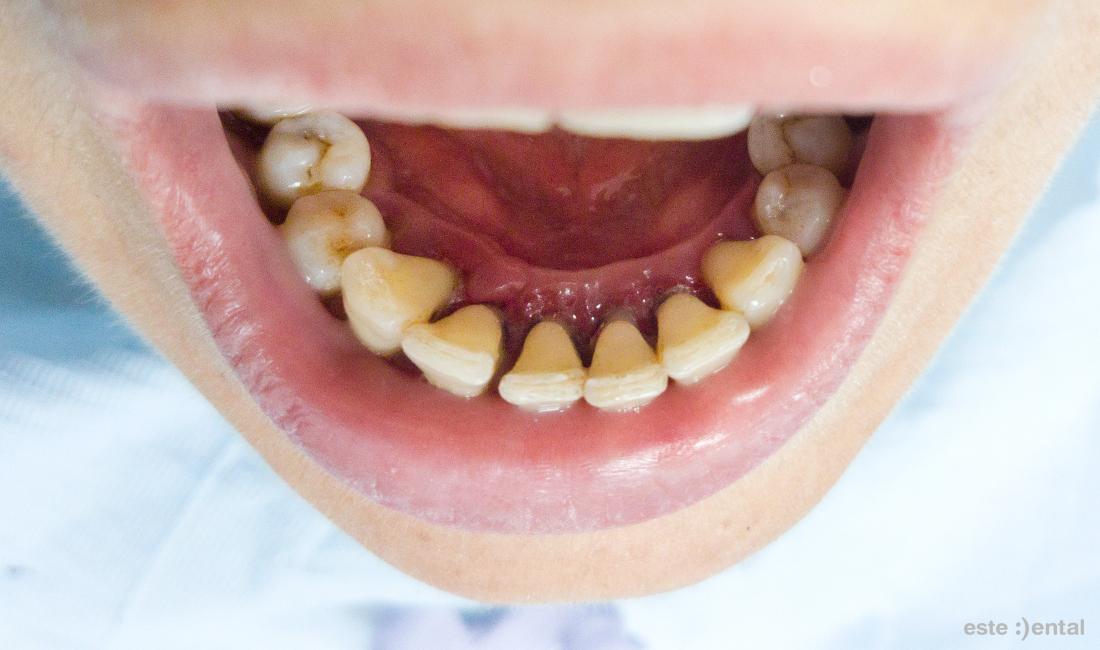 Лечение на пародонтит - състояние на долните зъби след почистване