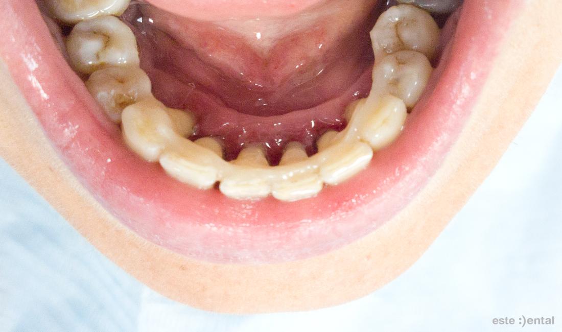 Лечение на пародонтит - шиниране на долните зъби с Ribbond