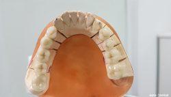 Металокерамични мостове на дъвкателните зъби