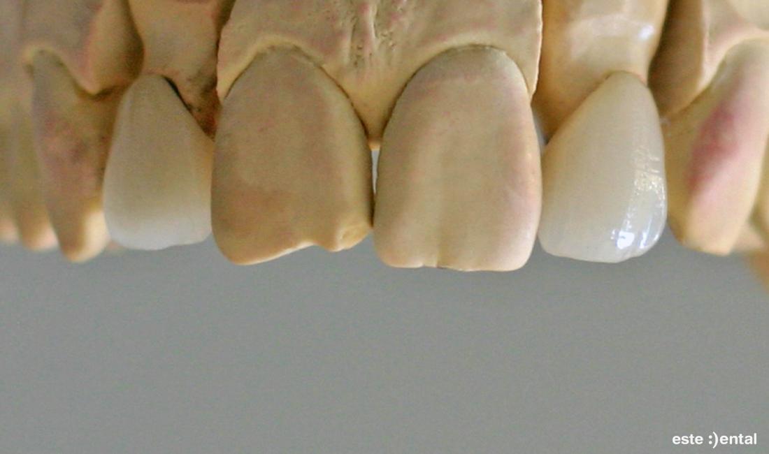 Металокерамични коронки с щифт върху модела