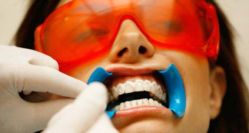 Професионално избелване на зъбите в кабинета