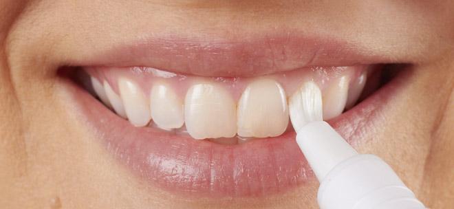 Домашно избелване на зъбите