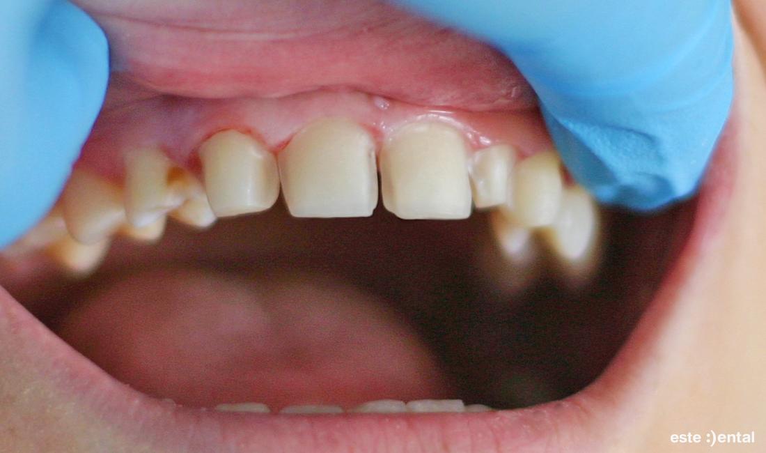 Порцеланови фасети - препарирани зъби