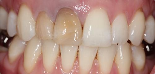 Промяна на цвета след канално лечение