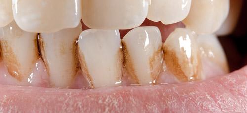 Външно оцветяване на зъбите