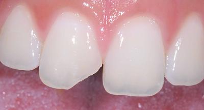 Зъбна фрактура