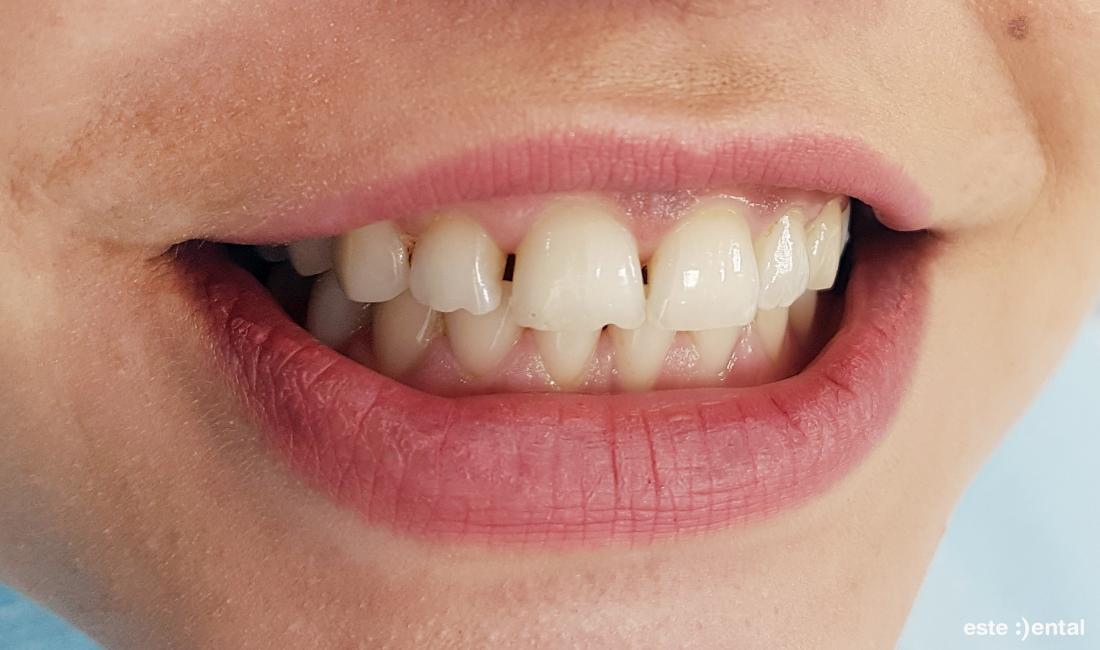 Затваряне на диастема и разстояния между зъбите
