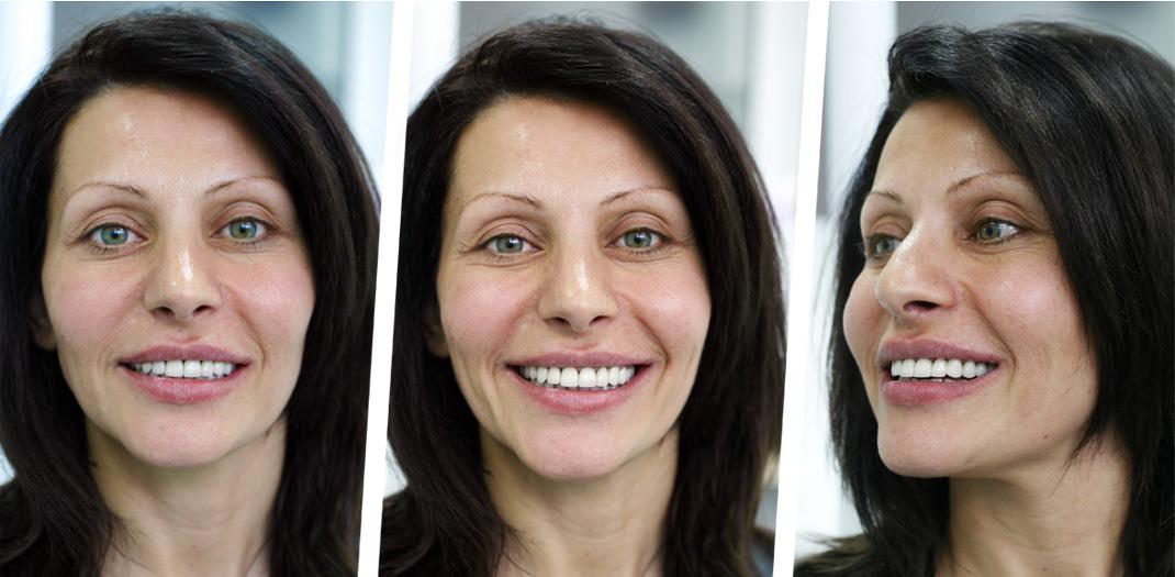 Гингивопластика и холивудска усмивка д металокерамични коронки - завършена усмивка