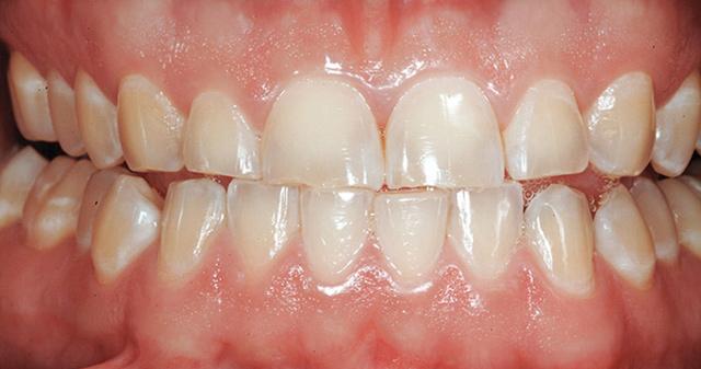Абразия на зъбите
