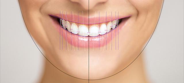 Анализ на усмивката