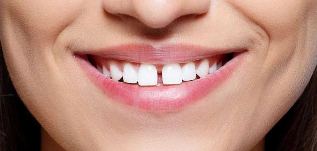 Разстояния между зъбите - диастема и треми