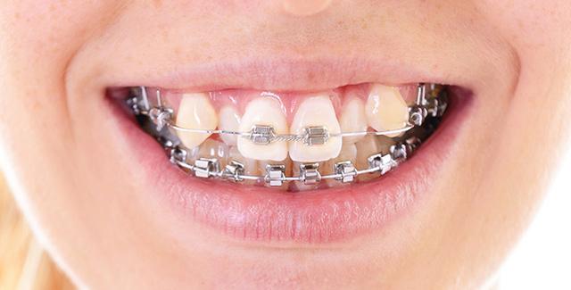 Неправилното подреждане на зъбите