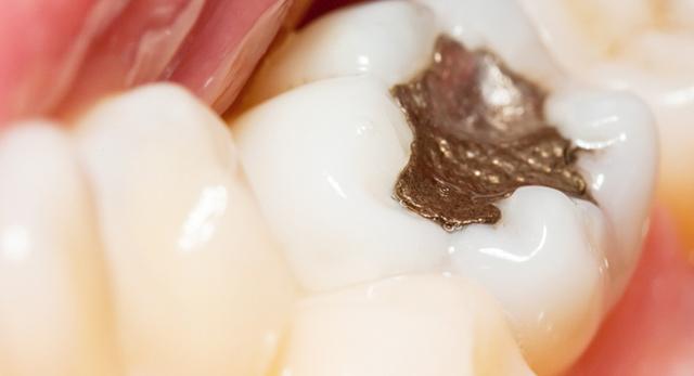 Стари пломби и фрактурирани зъби