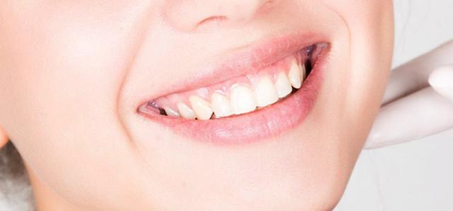 Венечна (гингивалната) усмивка