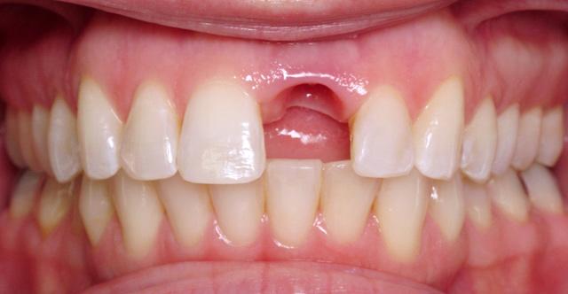 Възстановяване на рузрушени зъби