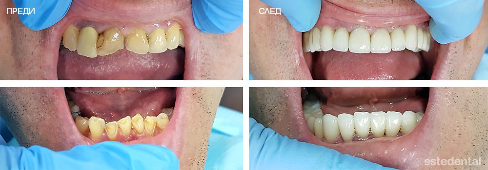 Лечение на абразия на зъбите и дълбока захапка - преди и след