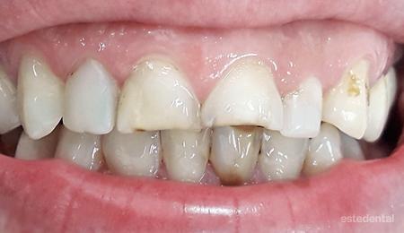 Абразия и оцветяване на зъбите