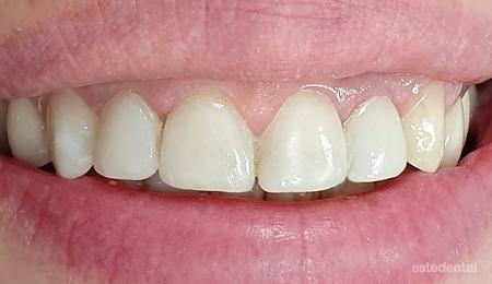 Фотополимерни фасети за лечение на абразия и оцветяване на зъбите