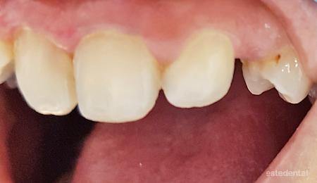 Липсващ горен кучешки зъб
