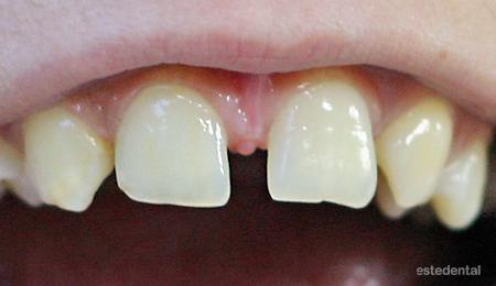 Разстояние между централните резци, липса на зародишни на страничните резци и кучешки зъби, които са заели мястото на страничните резци