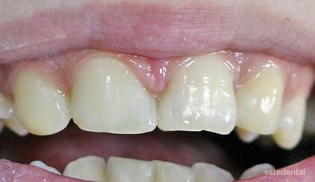 Затваряне на разстоянието между централните резци и премоделиране на кучешките зъби като странични резци - бондинг