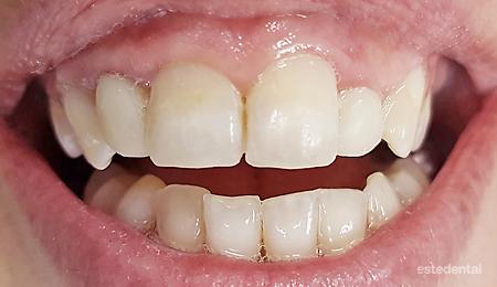 Саниране на зъбите в едно посещение