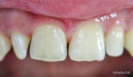 Разстояние между зъбите - преди бондинг