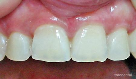 Затваряне на разстояние между зъбите - бондинг