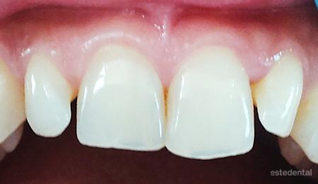Раазстояние между зъбите - преди бондинг