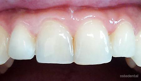 Затваряне на разстояние между зъбите и промяна на формата на зъбите с бондинг