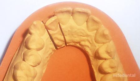 Страничен резец извън зъбната дъга - изпиляване за фасета